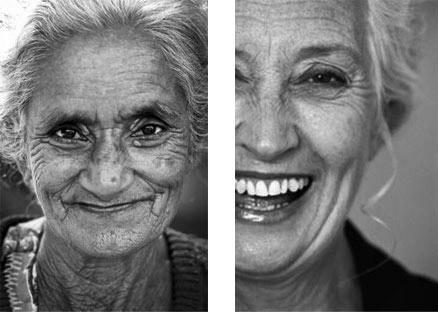 چگونه ترمیم دندان های تان باعث ترمیم صورت شما می شود