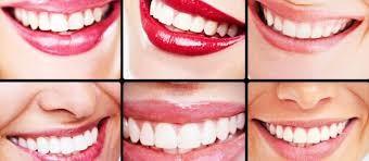 بهترین رنگ و شکل لمینت دندان