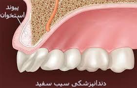 پیوند استخوان در ایمپلنت دندان