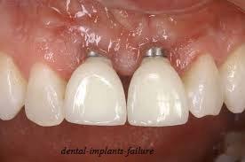ایمپلنت دندان ناموفق و شکست درمان