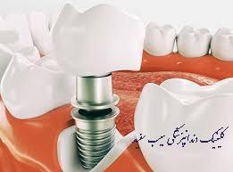 سوالات متداول درباره ی ایمپلنت دندان