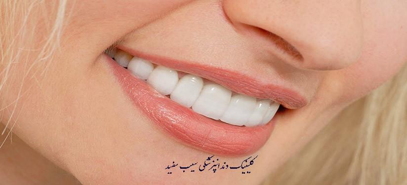 آیا لمینت دندان به دندان های طبیعی آسیب می رساند؟