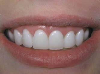 چگونه ونیر های دندان در طول زمان تغییر یافته اند؟