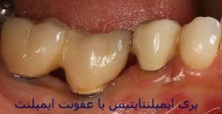 عوارض و خطرات ایمپلنت دندان