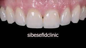 تعویض کامپوزیت با لمینت دندان و لومینیرز