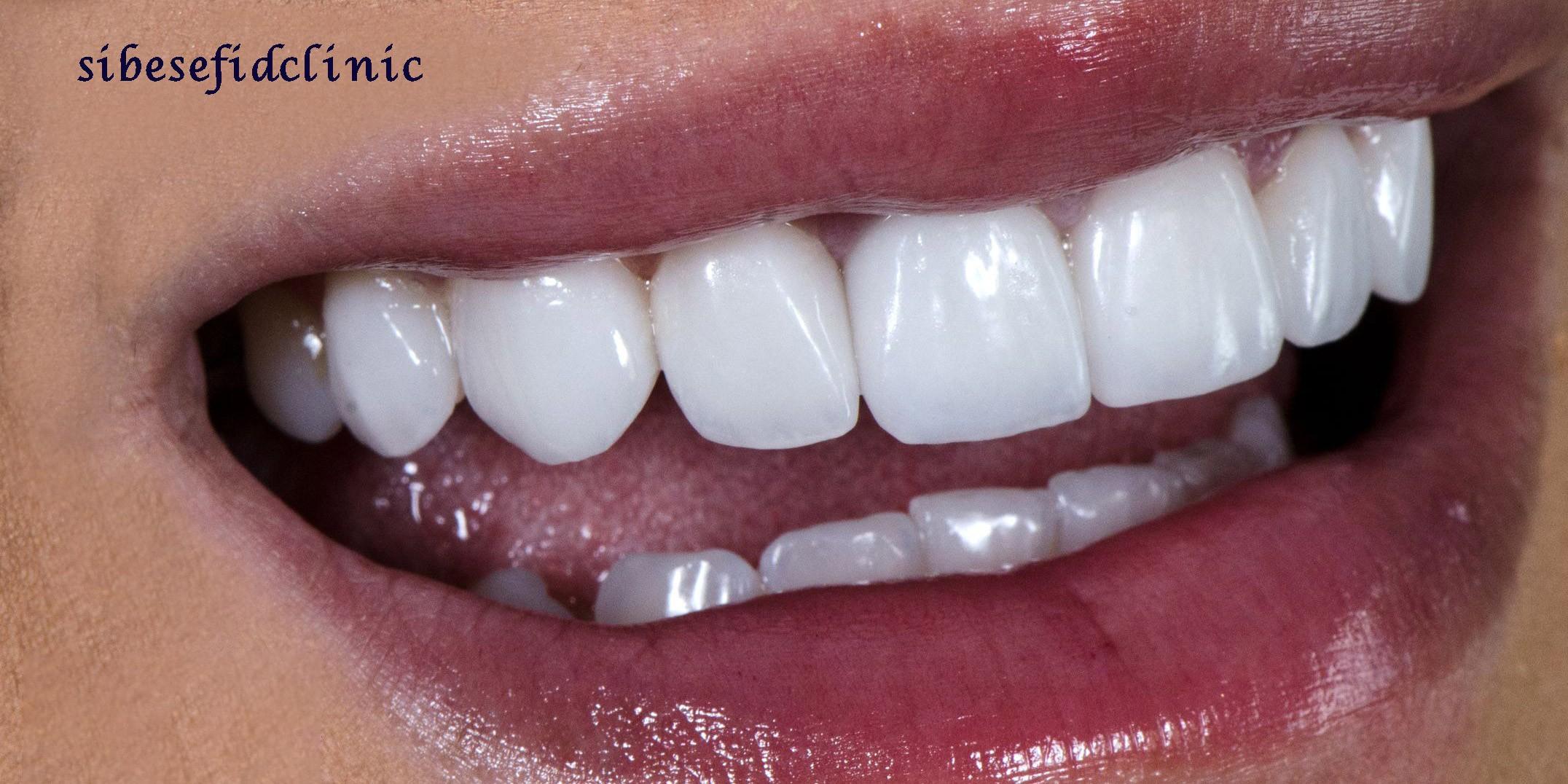 آیا می توان لمینت دندان را دوباره سفید کرد