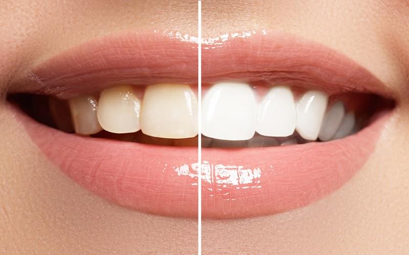 جلوگیری از پوسیدگی دندان: پرکردگی های آنتی باکتریال