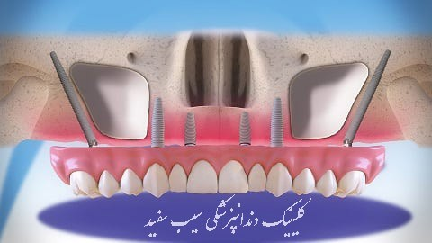 zygomatic-implants