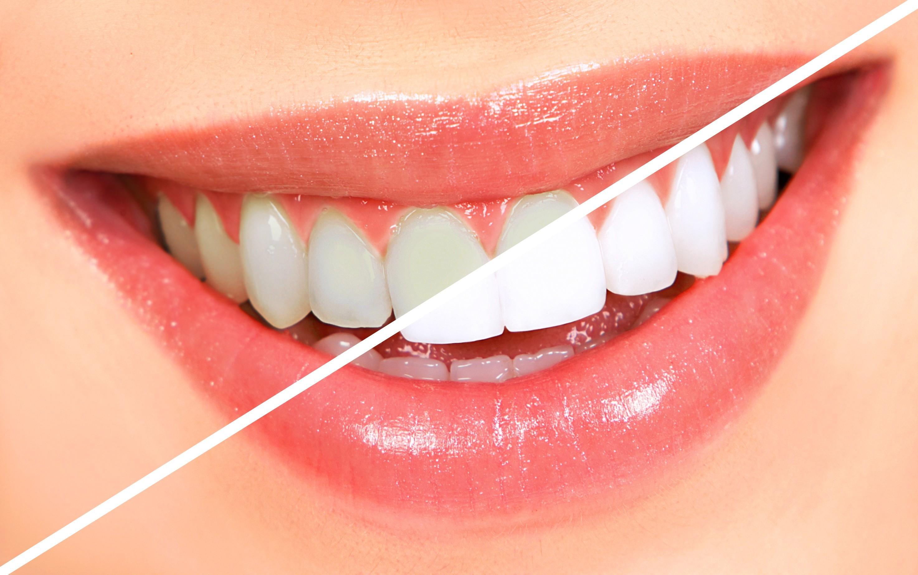 مزایا و معایب بلیچینگ دندان، سفیدکردن دندان با لیزر
