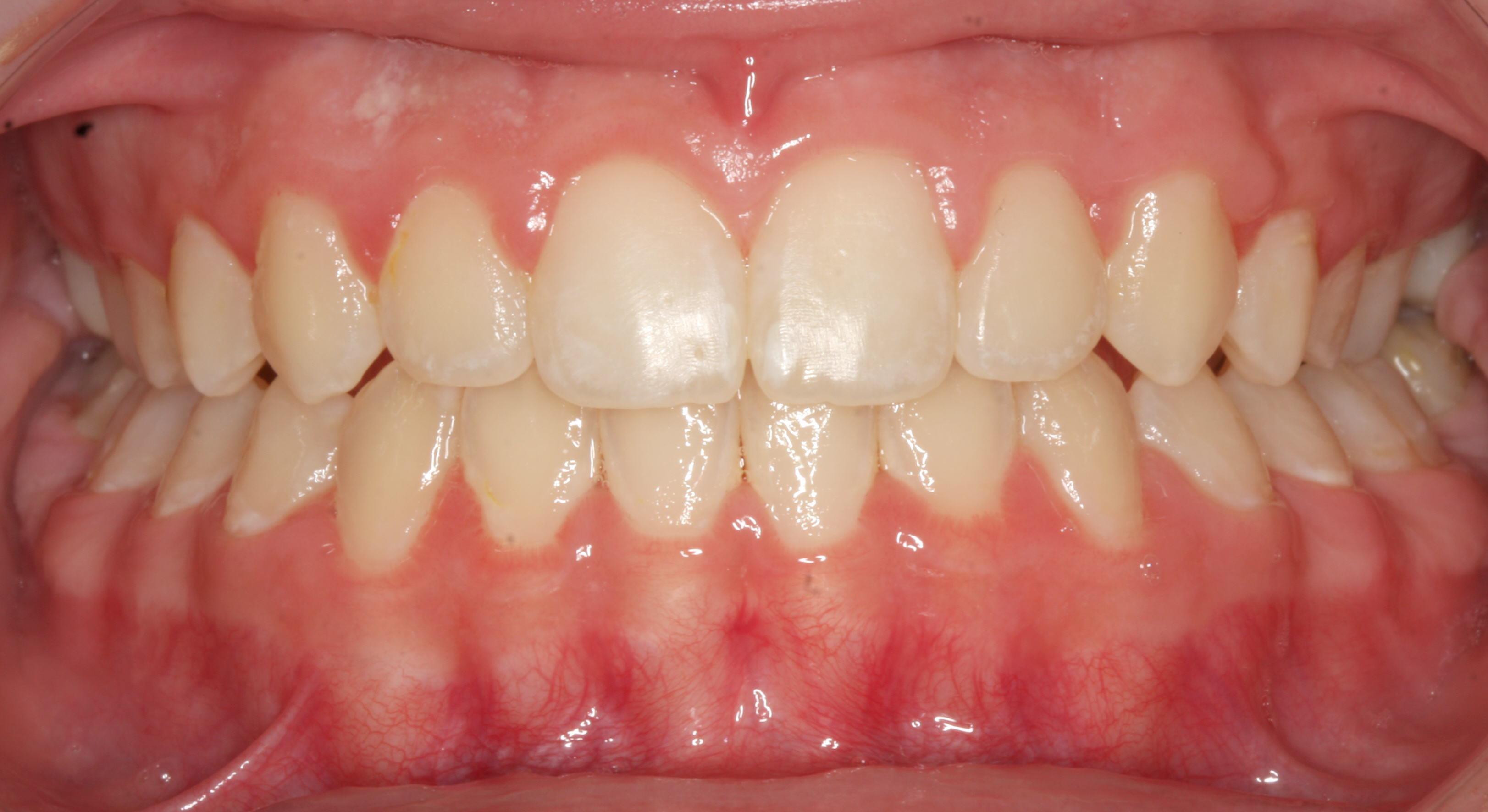 کراسبایت دندان چیست؟