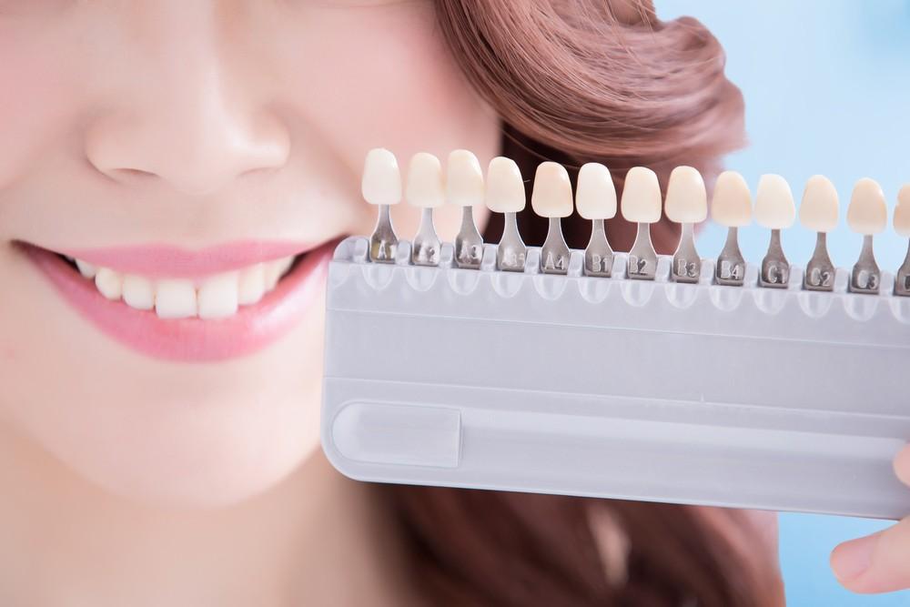 بلیچینگ دندان های غیر حیاتی تغییر رنگ یافته (2)