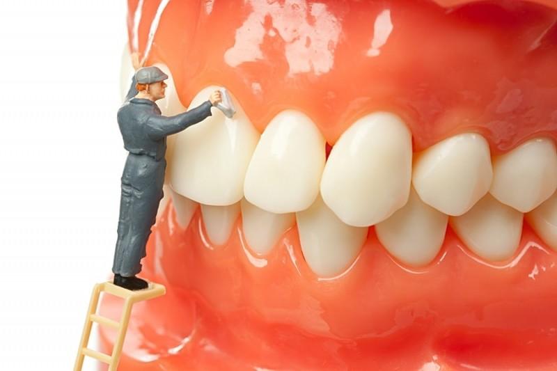 تفاوت بلیچینگ و لمینت دندان چیست؟