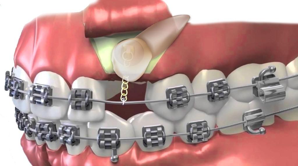 ارتودنسی دندان نیش چگونه انجام میشود؟