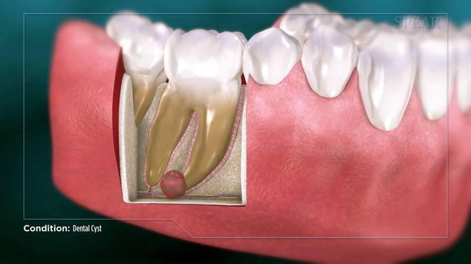 کیست دندان و راههای درمان آن