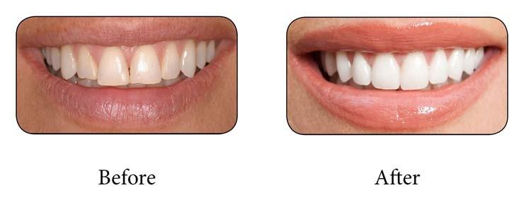 باندینگ دندان چیست؟