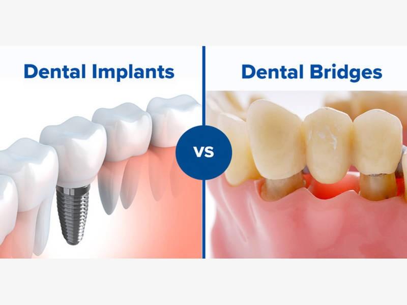 ایمپلنت یا بریج دندان، کدام روش بهتر است؟