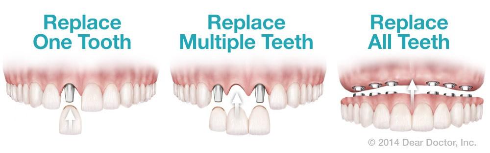 ایمپلنت، قیمت ایمپلنت دندان