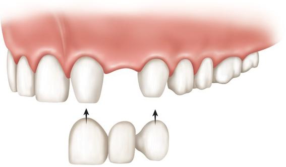 پل دندانی و انواع آن