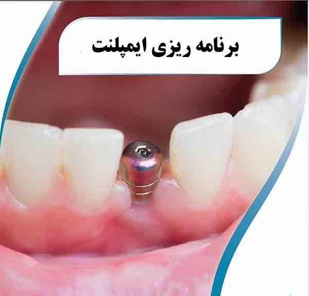 برنامه درمان ایمپلنت دندان