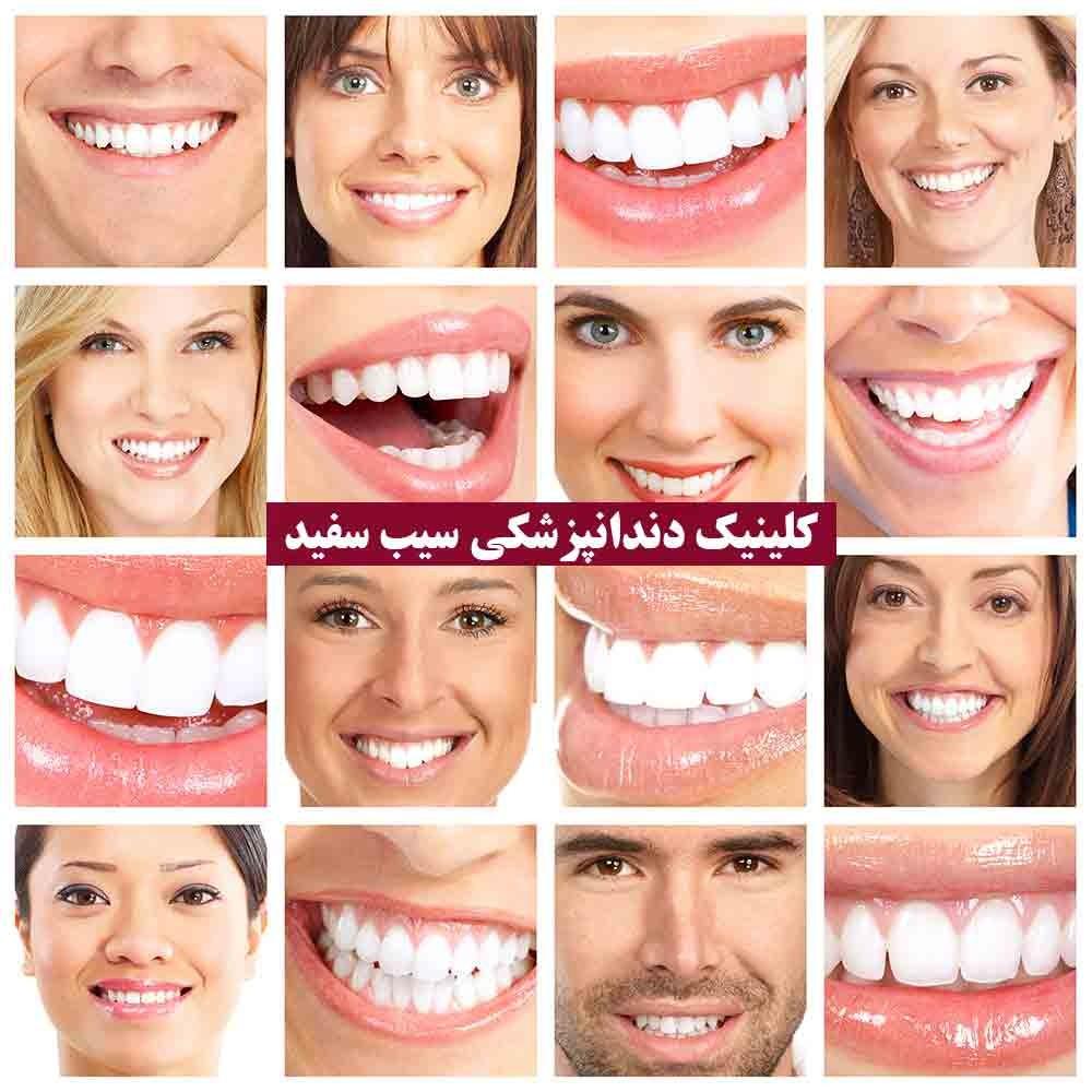 لمینت دندان که این روزها همه از آن صحبت میکنند چیست؟