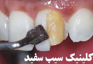 خراب شدن دندان بعداز انجام کامپوزیت ونیر