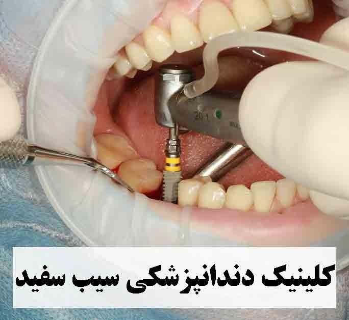 قیمت و انواع کاشت ایمپلنت دندان