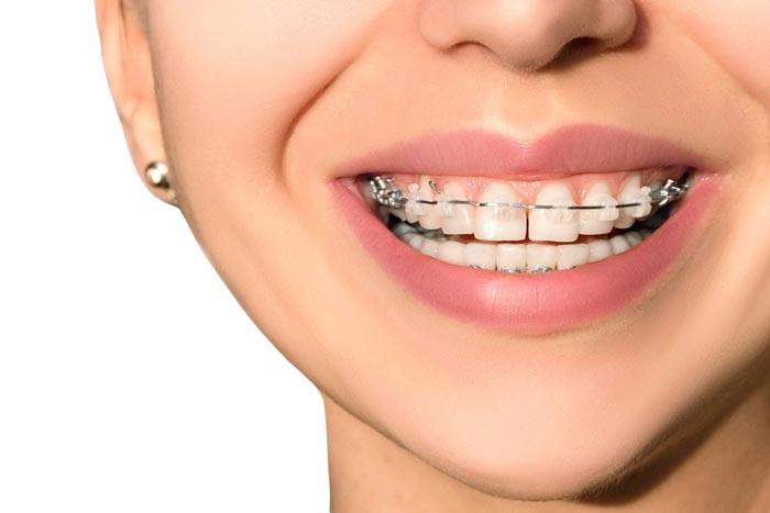 آیا میتوان دندان روکش شده را ارتودنسی کرد؟