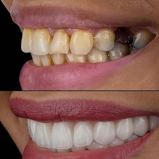 چرا باید ایمپلنت دندان را انجام داد؟