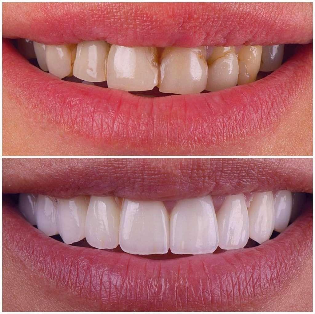 اصلاح بدفرمی دندان ها با لمینت دندان