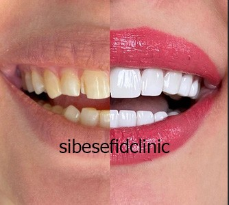 کامپوزیت دندان اقساطی