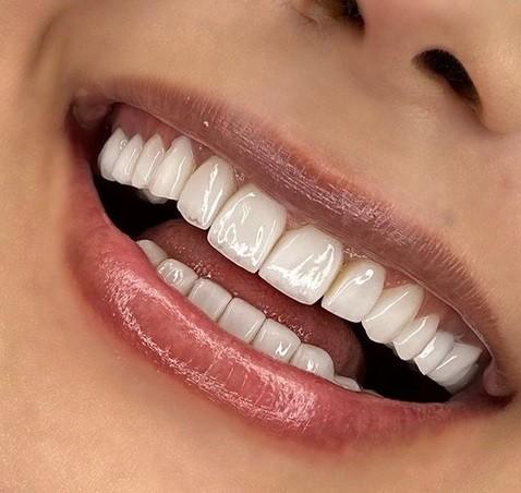 تفاوت لمینت و روکش دندان