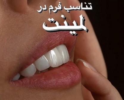 لمینت چطور به دندان می چسبد؟