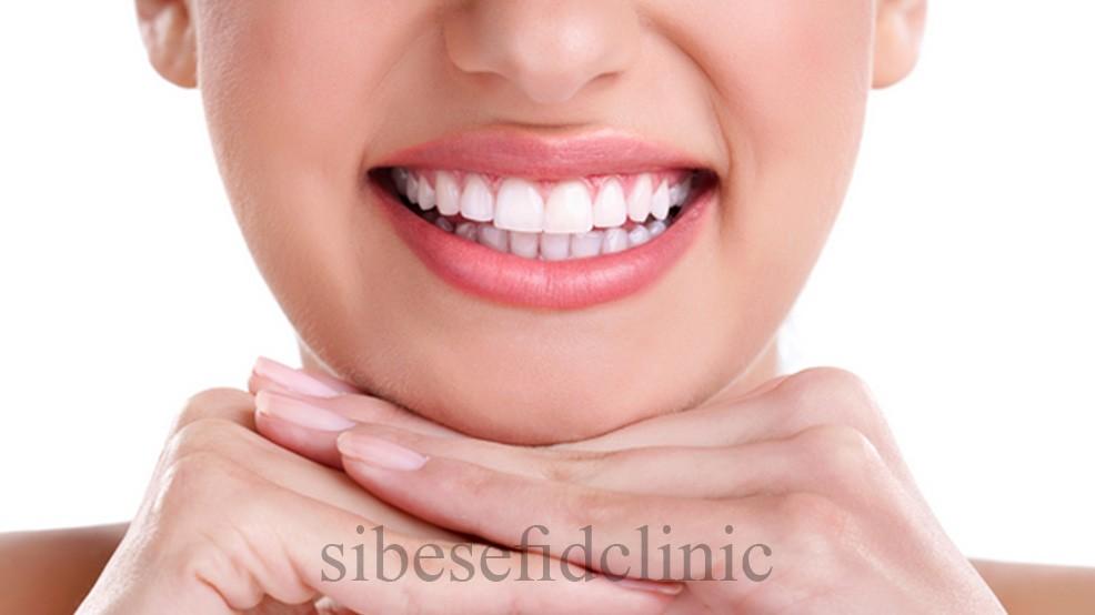 نكته هایی درباره كامپوزيت كه معمولا دندانپزشكان به شما نمي گويند