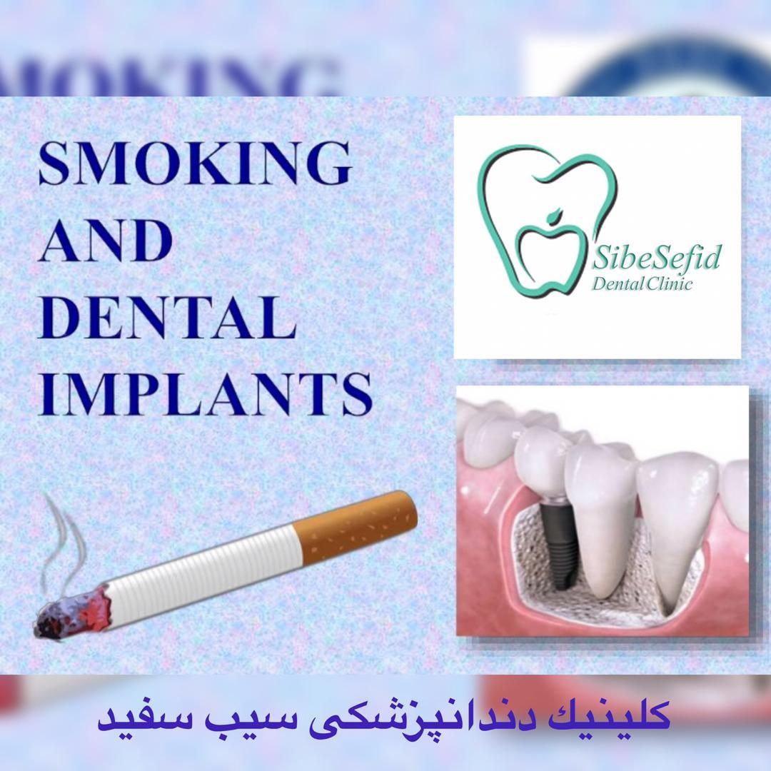 تاثیر سیگار بر ایمپلنت یا کاشت دندان