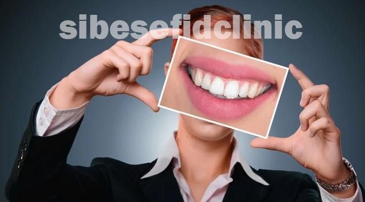 چه کسانی کاندید لمینت دندان هستند؟