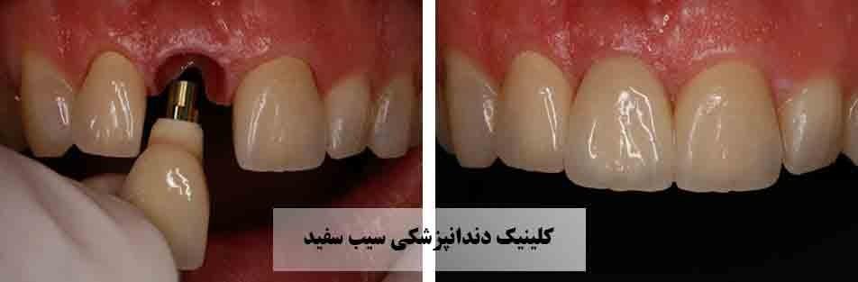 افتادن و شل شدن ایمپلنت دندان