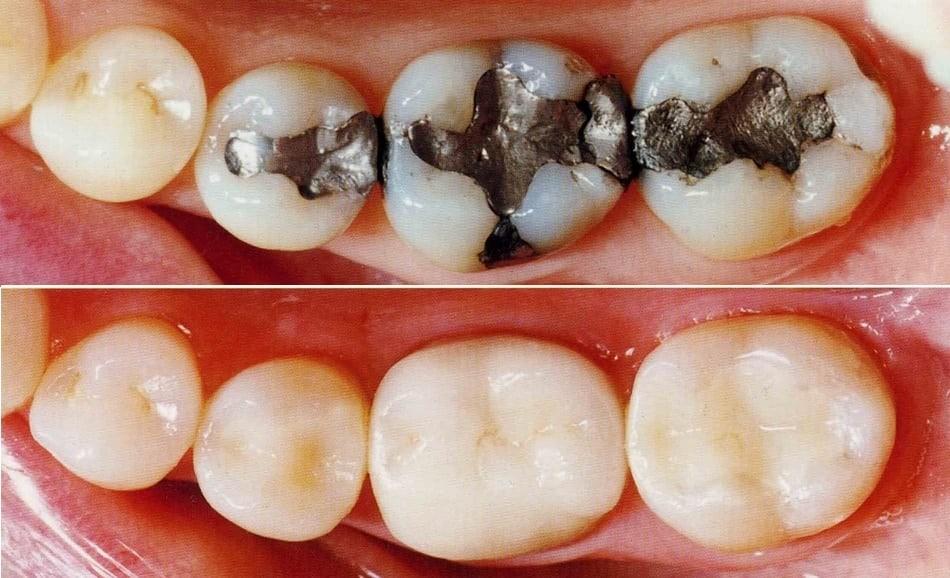 پر کردن دندان، آمالگام یا کامپوزیت؟
