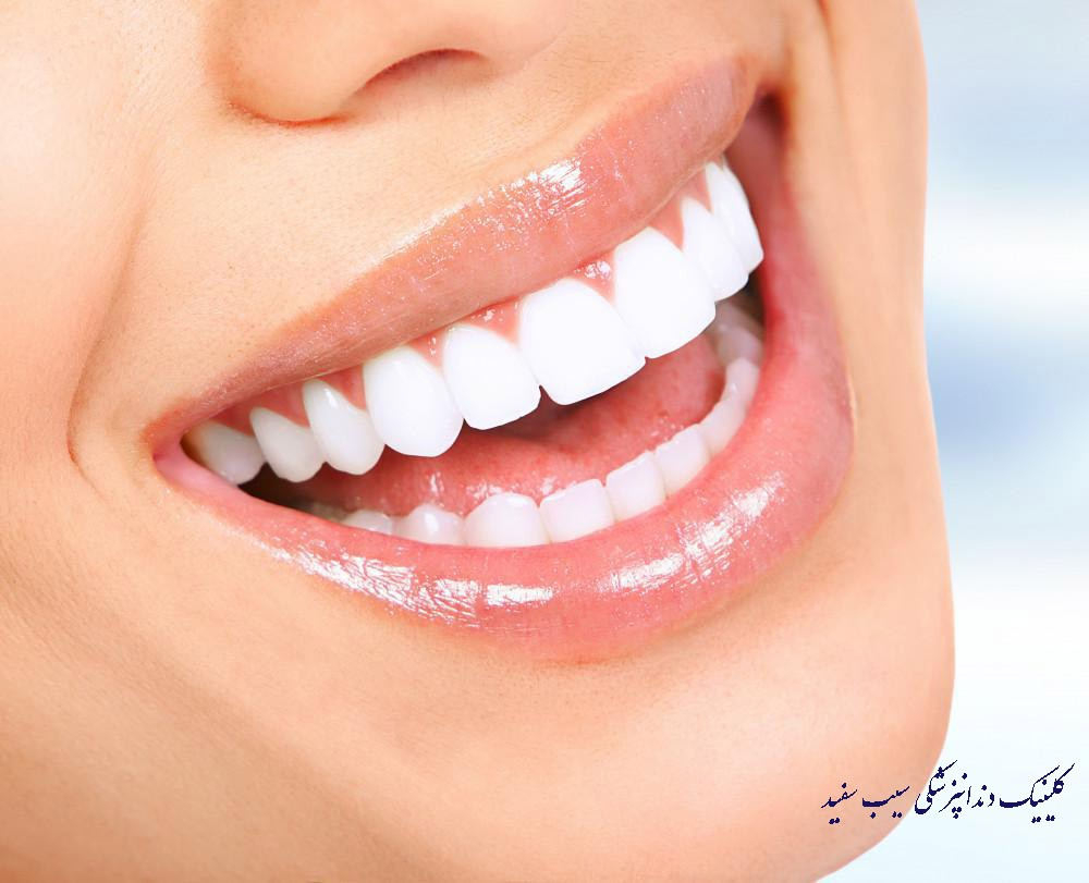 آیا لمینت دندان دائمی است