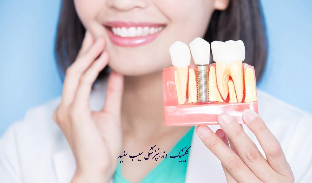 چه کسانی می توانند ایمپلنت دندان انجام دهند؟