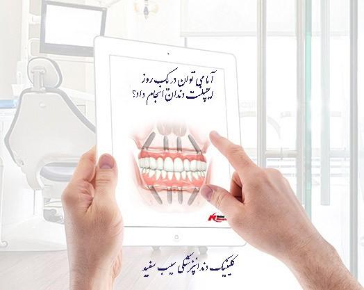 فیلم فناوری جدید ایمپلنت کل دهان در همان روز