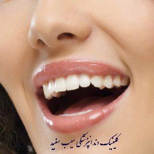 تغییر رنگ لمینت دندان