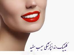 کامپوزیت دندان برای دندان های کج
