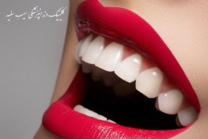 کامپوزیت دندان بهتر است یا بلیچینگ