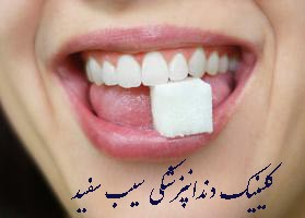 dental-implant-for-suger