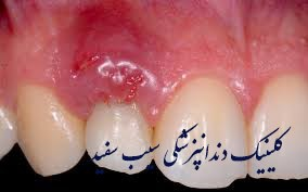 infection-of-dental-implant