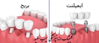 bridge-or-dental-implant