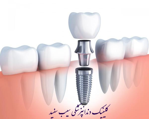 tafavote-implant-va-laminate
