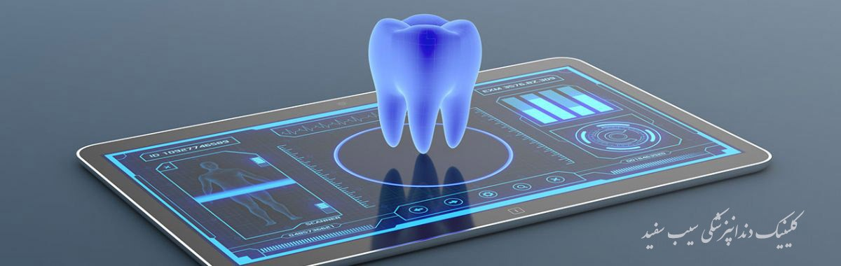 digitally-dental-implants