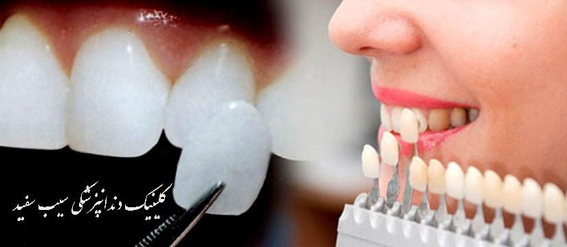 آیا لمینت دندان سبب پوسیدگی دندان می شود