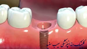 dental-implat-after-tooth-extraction
